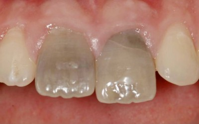 Tooth Discolouration: Why and how to fix your smile.