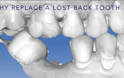 Why and how should you replace a missing tooth