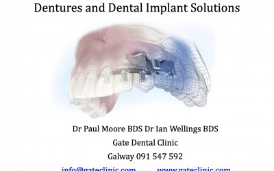 Implant and denture solutions