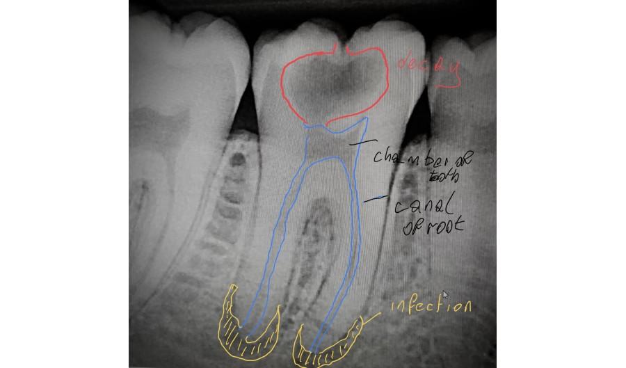 Why do Dentists take x-rays